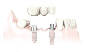 img_multi_tooth_replacement_01