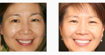 Woman smile before after