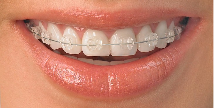 clear orthodontic braces