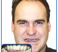 damon braces before