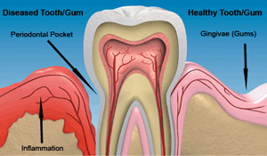 periodontal-disease-treatment
