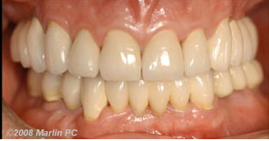 Implant Rejuvenation of the Jaw After