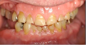 Implant Rejuvenation of the Jaw Before