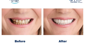 anap on smile before after
