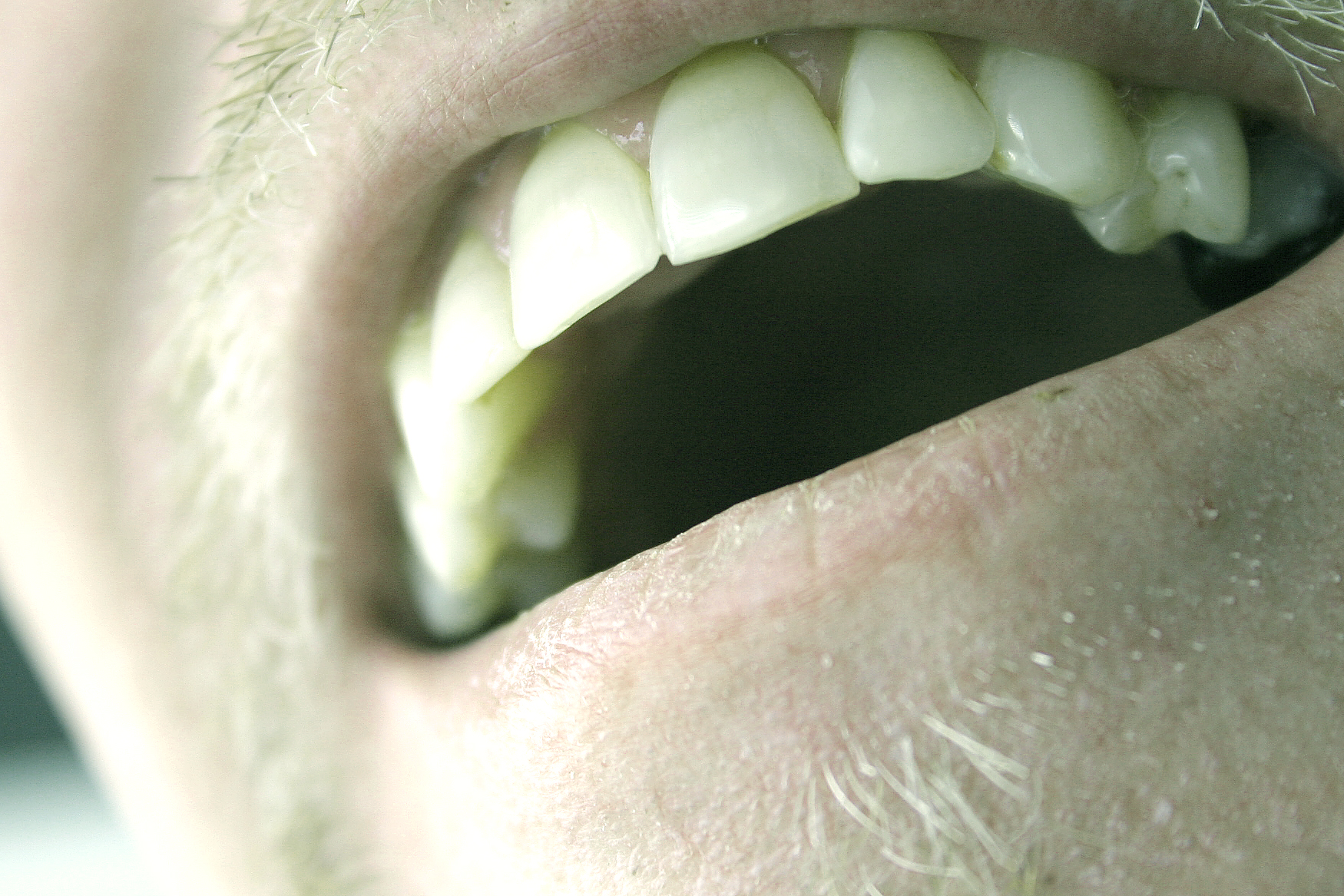 Is Periodontal (Gum) Disease Reversible?