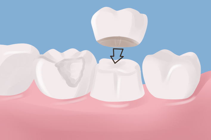 How Durable Are Dental Crowns?