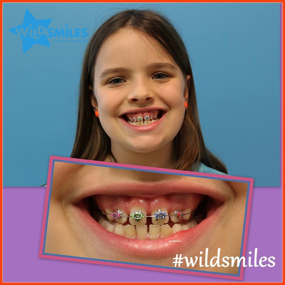 Make Your Child's Braces Fun with WildSmiles