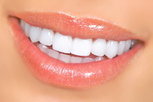How Often Should My Veneers Be Replaced?