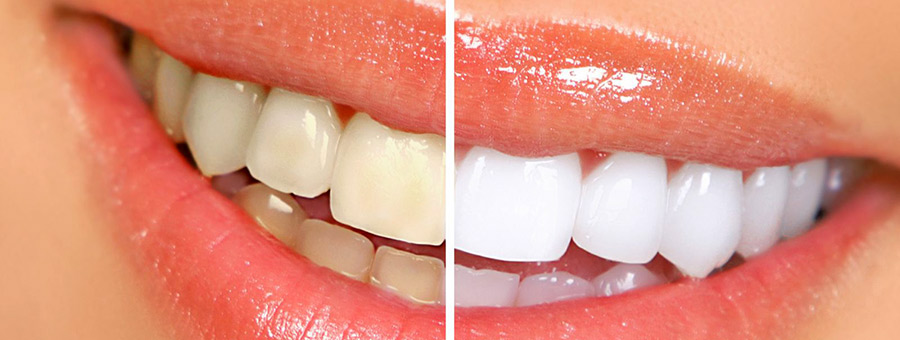 Why Professional Whitening Trumps At-Home Kits