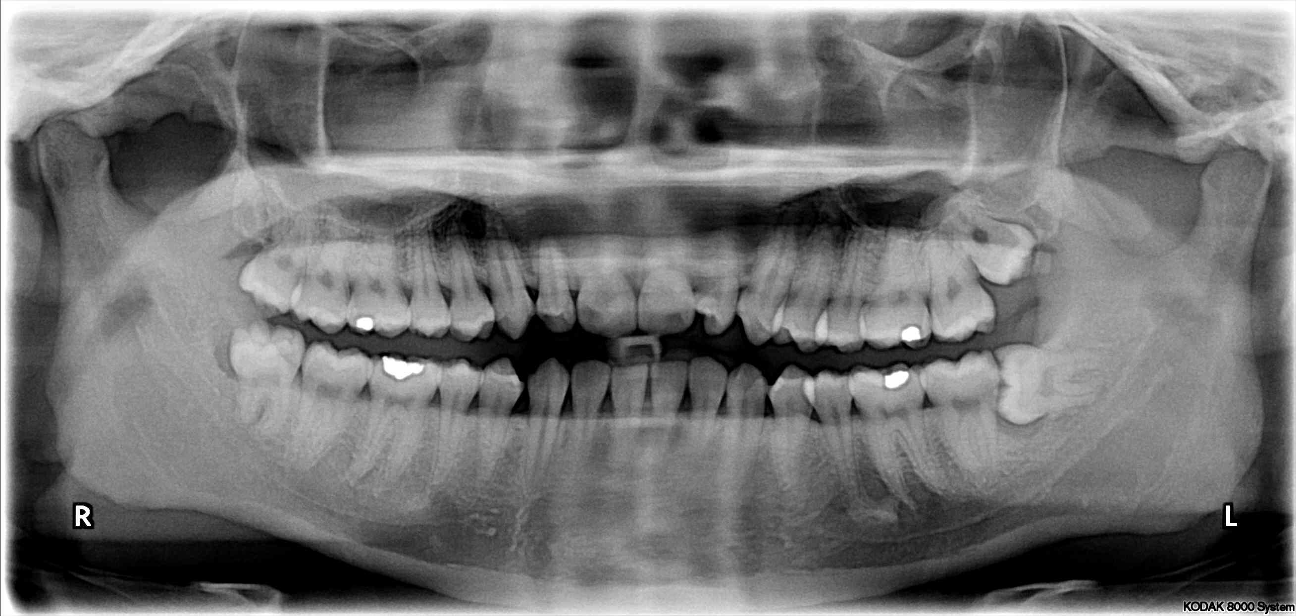 Impacted Wisdom Teeth Can Crowd Your Smile