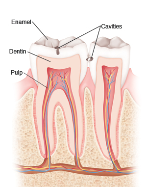 Can I Leave My Cavities Unfilled?