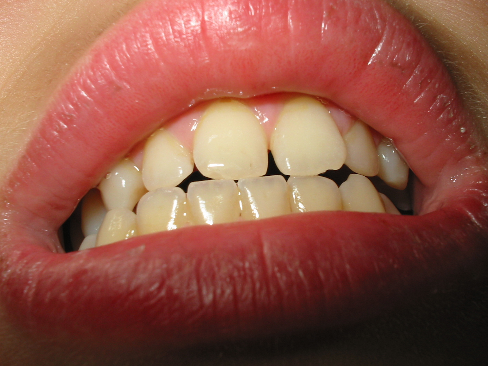 Diastema: Fixing the Gap in Your Smile