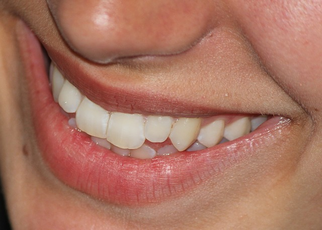 Crowded Teeth Affect More Than Your Appearance