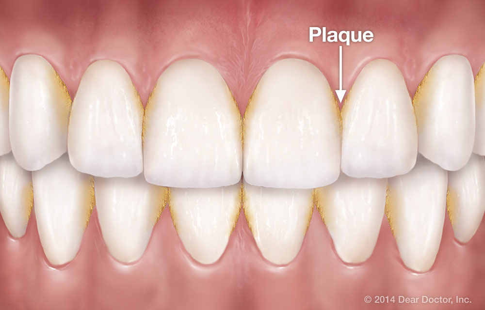 Plaque Prevention: The Key to a Healthy Smile