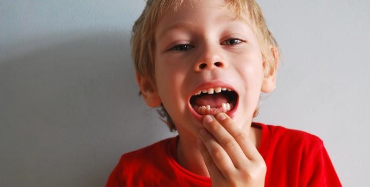 baby-teeth-1473858_1280