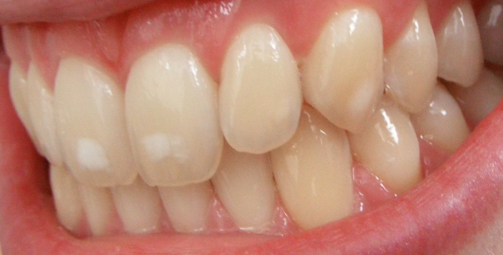 dental_fluorosis_mild