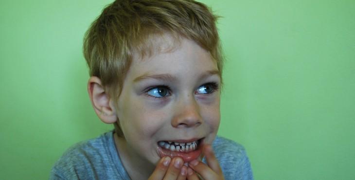 baby-teeth-1402483_1280