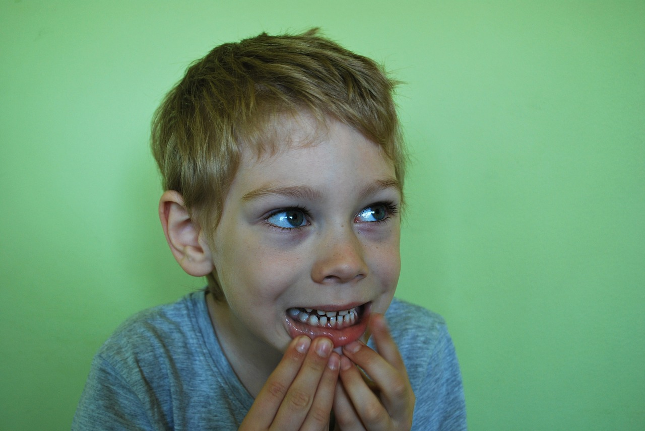 Sequence and Timing of Losing Baby Teeth—Is Your Child on Schedule?