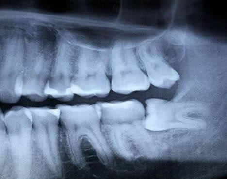 Your Top Questions About Wisdom Tooth Removal: Answered