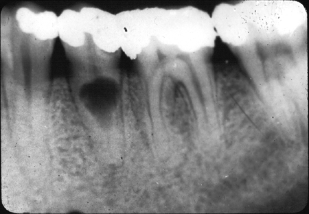 Root Resorption: What Is It, and What Can Be Done?