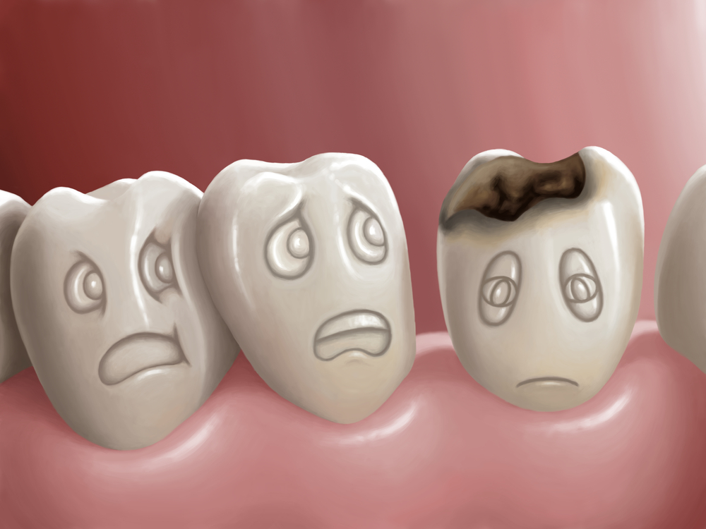 The Five Stages of Cavity Formation