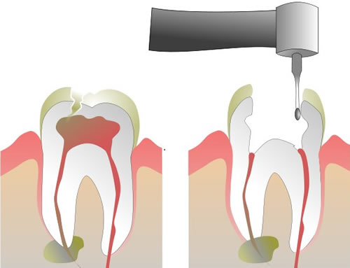 Root Canal Therapy: It Isn't What It Used to Be