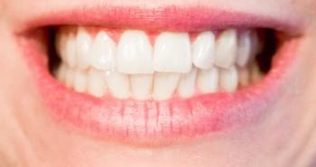 teeth-1652976_1280 (1)