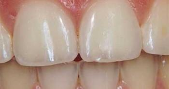 teeth-enamel-wear