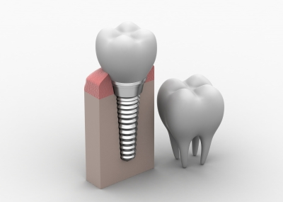 Are There Different Types of Dental Implants?