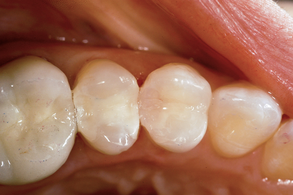 Should Silver Fillings Be Replaced with Tooth Colored Fillings?