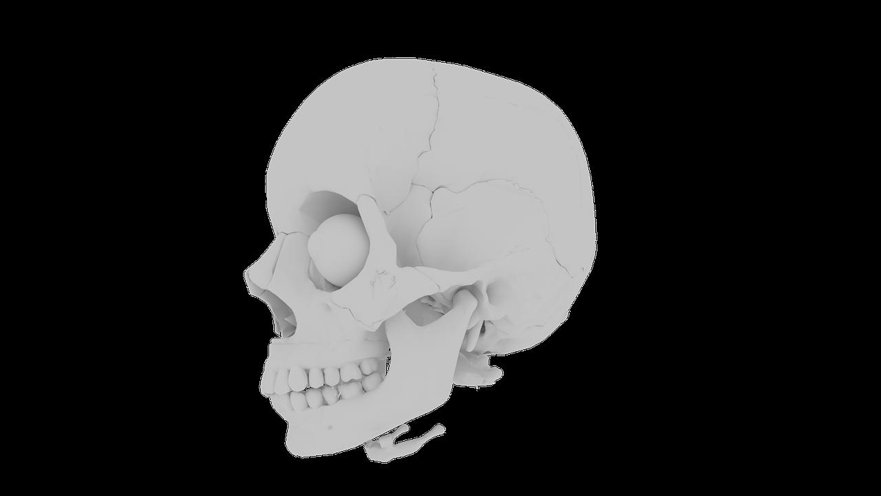I Have Bone Loss, Can I Still Get Dental Implants?