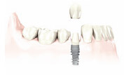 DENTAL IMPLANT_single_tooth_replacement_02
