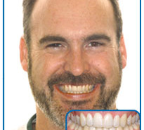 damon braces after