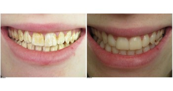 Composite veneer facing to mask enamel dysplasia