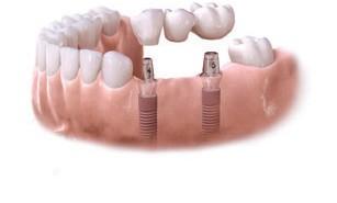 x Astra Tech Dental Implant Bridge and Step3