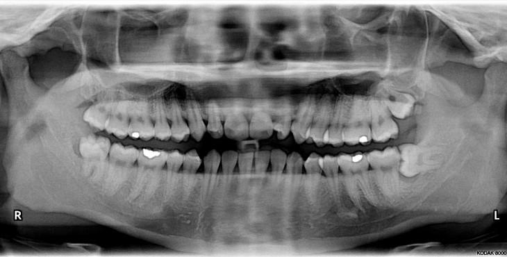 Impacted_wisdom_teeth