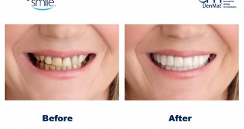 Snap on smile before after