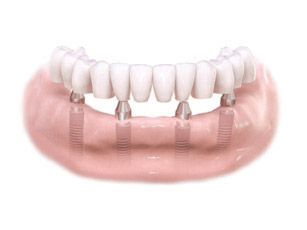 Am I A Candidate For All On 4 Dental Implants