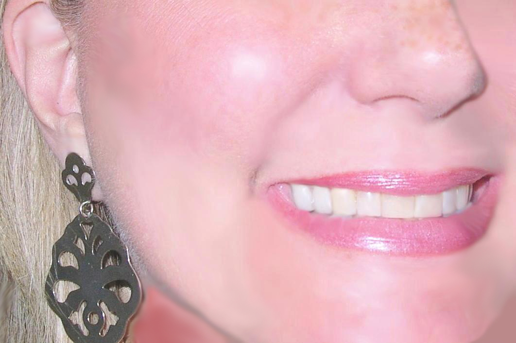 What Is Intrinsic Tooth Discoloration?