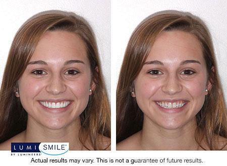 Dental Veneers for Gapped Teeth