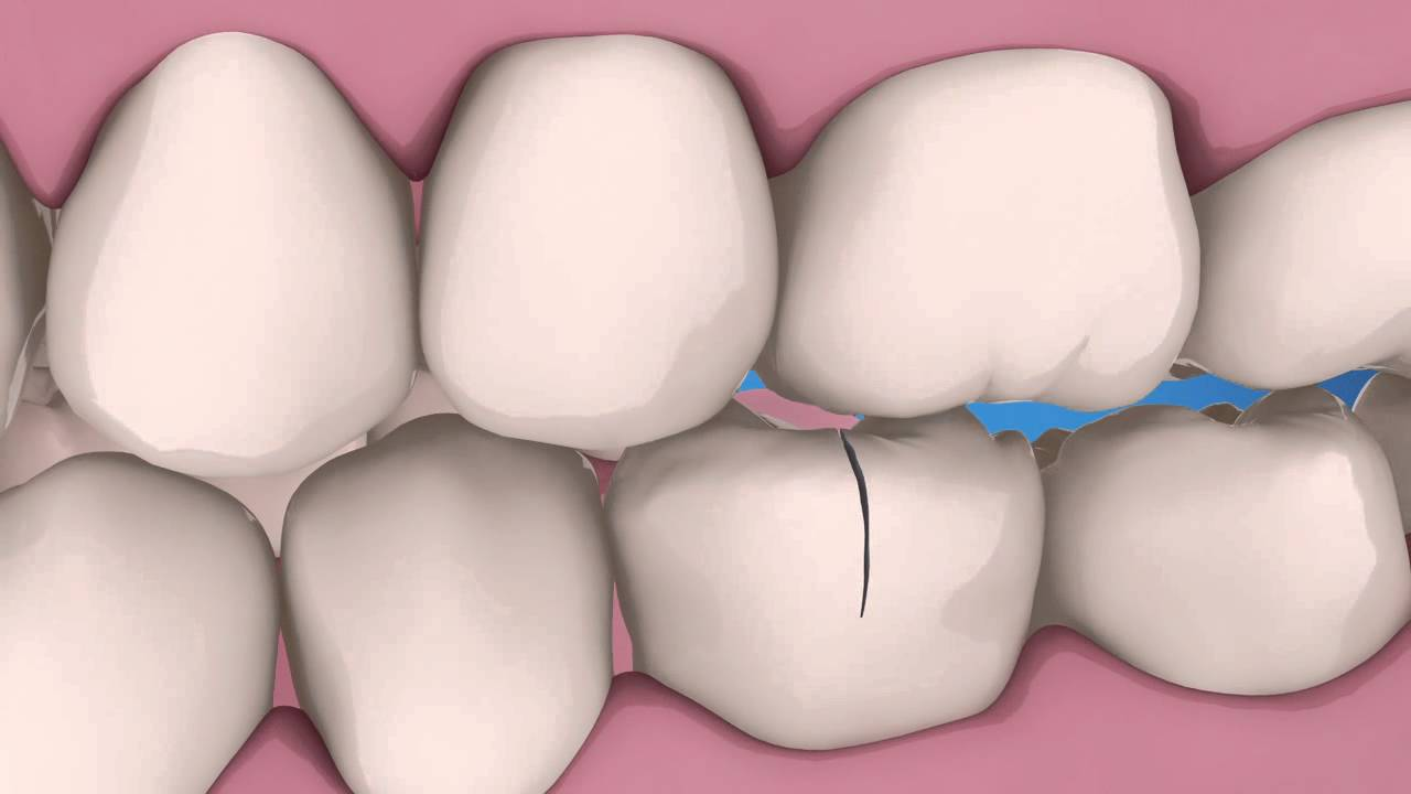 Exploring Endodontics: Split vs. Cracked Teeth