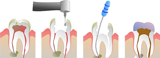 root canal wiki
