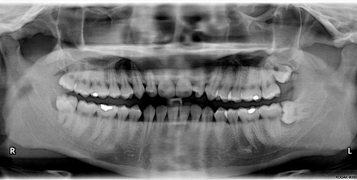 Impacted_wisdom_teeth