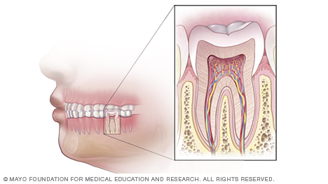 de00010-overview-of-root-canal-treatment