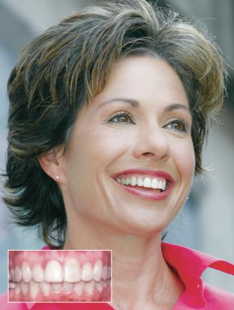 Orthodontics for Adults: Spotlight on Damon Braces