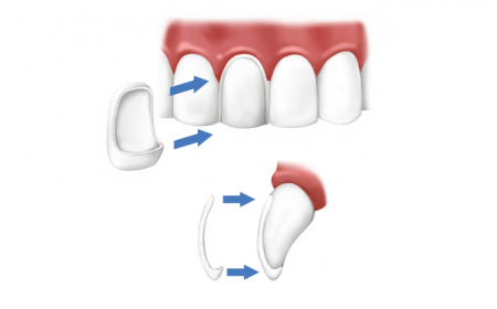 The Advantages and Disadvantages of All-Ceramic Dental Crowns