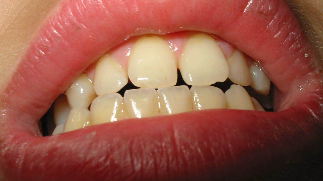 Diastema Fixing The Gap In Your Smile Your Dental