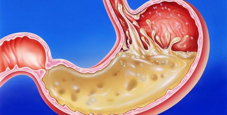 stomach-acid-reflux-728x400