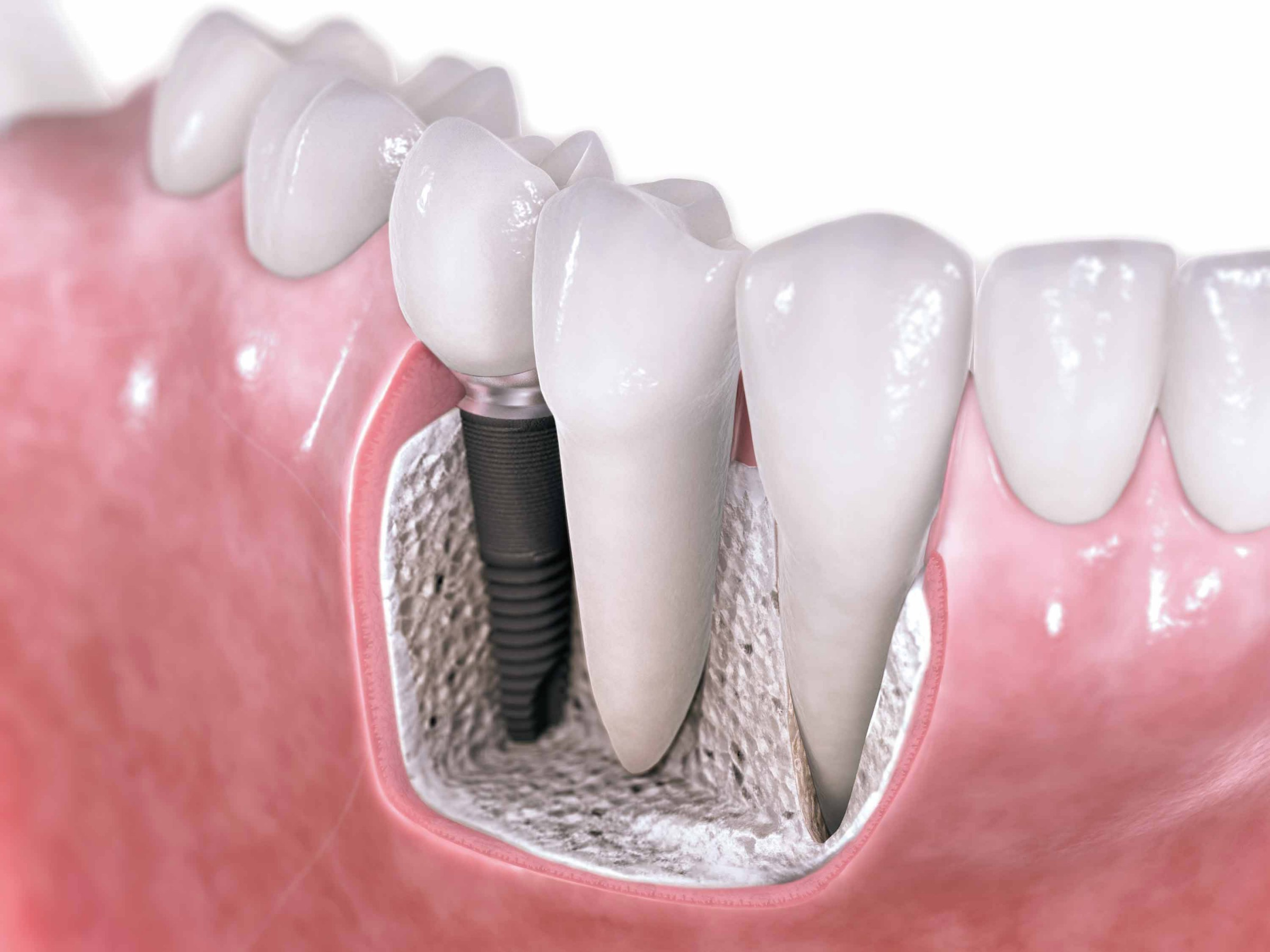 Transform Your Smile with Implant Supported Dentures