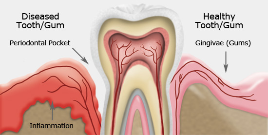 gum_disease_illustration